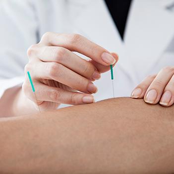 Fachbereich Akupunktur